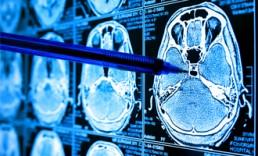Conferencias virtuales - USO DE IA en MEDICINA para fines de diagnóstico y tratamiento