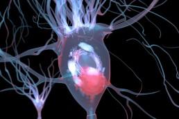 Un estudio genético relaciona la demencia de los cuerpos de Lewy con el Alzheimer y el Parkinson