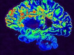 Mejora en la clasificación de la enfermedad de Alzheimer gracias a la inteligencia artificial